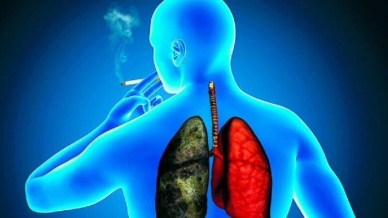 El cáncer de pulmón es la primera causa de muerte por cáncer a nivel mundial