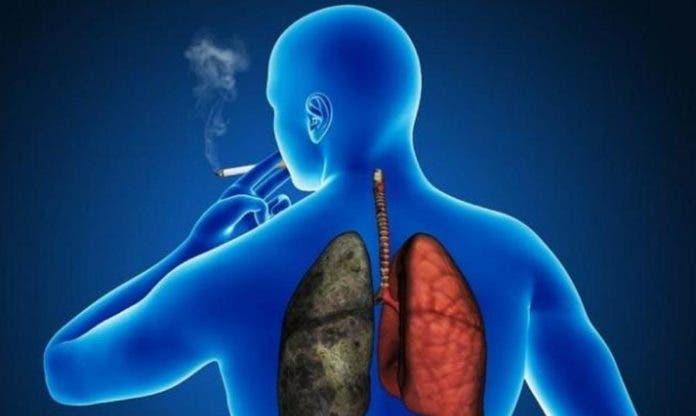 64% de los casos de cáncer de pulmón son causados por el tabaco